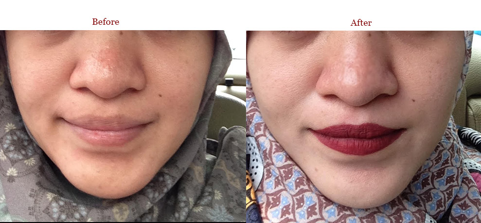 before-after Perawatan Wajah di Bamed Skin Care