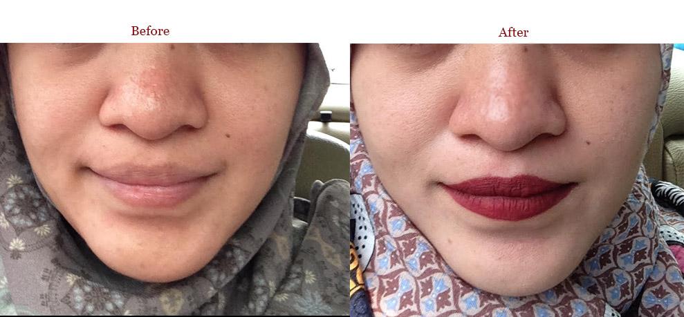 before-after Perawatan Wajah di Bamed Skin Care